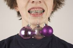pimp my braces by Geir Tonnessen --- lol I would most definitely not do that to myself! Photography Exhibition, Book Photography, Dental Humor, Smiles And Laughs, Hanging Ornaments, Christmas Balls, Merry Christmas, Orthodontics, Braces