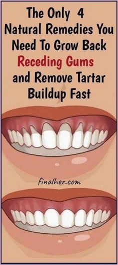 Natural Health Remedies, Herbal Remedies, Cold Remedies, Holistic Remedies, Natural Cavity Remedy, Natural Health Tips, Natural Cures, Grow Back Receding Gums, Reverse Receding Gums