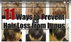 Lupus is an autoimmune disease that typically presents a wide range of symptoms, and sometimes one of those symptoms is hair loss.