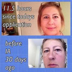 There are only 18,613 active distributors in the USA!!!!!! Get in this Ground Floor Opportunity now! Watch this video and get with me and we will get you started! http://www.2minuteskinmiracle.com/