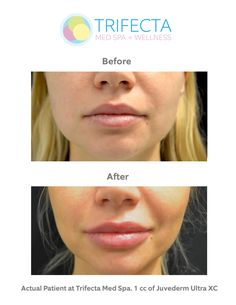 Juvederm Filler for Lips. Before After. Actual patient at Trifecta Med Spa Downtown NYC location.