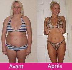 perte de poids après bypass gastrique