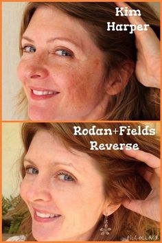 """There is hope for melasma (pregnancy mask), sun spots, freckles, dull skin... REVERSE! Meet fellow consultant Kim Harper. She achieved her FABULOUS 12 week results using the Reverse Regimen with the Accelerator Pack. This is what she had to say... """"I tried numerous in-office procedures and products, but nothing worked on my freckles and melasma. Rodan+Fields gave me my face back. I'm grateful and I'm pumped."""" I'd love to help you achieve healthy glowing skin!!  Barbaramccarty.myrandf.com"""