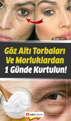 Want to Get Rid of Under Eye Bags and Bruises in a Day .- Göz Altı Torbaları ve Morluklardan Bir Günde Kurtulmak İster Misiniz? – Would You Like To Get Rid Of Under Eye Bags And Bruises In A Day? Brown Spots On Skin, Under Eye Bags, Skincare Blog, Homemade Skin Care, Facial Care, Perm, Health And Beauty, Beauty Makeup, Beauty Hacks