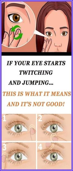 If Your Eye Starts Twitching And Jumping�This is What it Means And It�s Not Good! Natural Remedies For Allergies, Natural Headache Remedies, Natural Remedies For Anxiety, Daily Health Tips, Health And Fitness Tips, Health Advice, Health Blogs, Healthy Women, Healthy Tips