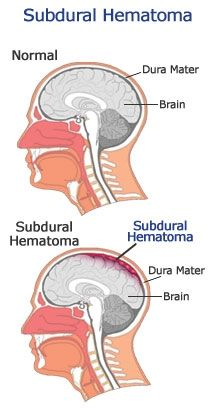 Wk 7 Study Guide: Neurological Assessment, Disorders of Consciousness, Increased Intracranial Pressure, TraumaticBrain Injury, Craniotomy - Medical Surgical Nursing Nursing Programs, Nursing Tips, Nursing Notes, Neurological Assessment, Subdural Hematoma, Intracranial Pressure, Med Surg Nursing, Trauma Nurse, Medical Surgical Nursing