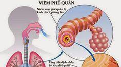 Bệnh ho-hen suyễn: Viêm phế quản