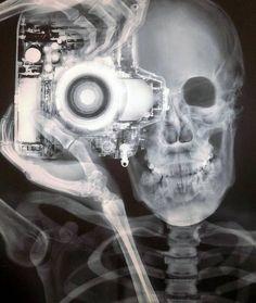 Camera x-ray <3