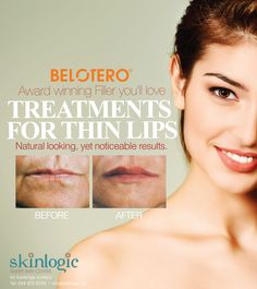 @Belotero®- Award winning #Filler you'll #love TREATMENTS FOR THIN #LIPS Natural looking, yet noticeable results. #aesthetics #beauty #SkinlogicSA
