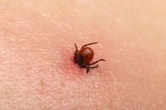 A tick bite may seem like a normal part of childhood, but it carries serious risks of disease. Tick bites can cause Lyme disease, paralysis, and more. Bloating Detox, Bites And Stings, Tick Bite, Stem Cell Therapy, Insect Bites, Lyme Disease, Wuhan, Pain Management, Baby Health