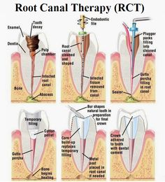 During the root canal therapy, the inflamed or infected pulp is removed and the inside of the tooth is carefully cleaned and disinfected, then filled and sealed with a root canal filling material.