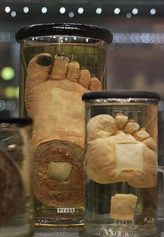 Hunterian Museum - Elephantiasis. Image by Mister J. Photography