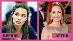Angelina Jolie Plastic Surgery Before And After Angelina Jolie Plastic Surgery #AngelinaJolieplasticsurgery #AngelinaJolie #gossipmagazines