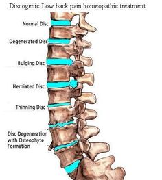 Severe Back Pain Treatment Homeopathy For All: Discogenic Low Back Pain Homeopathic Treatment Yoga For Back Pain, Neck And Back Pain, Low Back Pain, Severe Back Pain, Regenerative Medicine, Massage Benefits, Chronic Stress, Back Pain Relief, Acupuncture