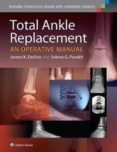 Triple arthrodesis footeducation ankle pinterest arthritis total ankle replacement an operative manual httphealthbooksshoptotal ankle replacement an operative manual fandeluxe Images