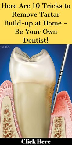 Here Are 10 Tricks to Remove Tartar Build-up at Home – Be Your Own Dentist! #TakeCareOfOralHealth #WhatToDoForOralCare #DoesMoonOralCareWork Reverse Cavities, How To Prevent Cavities, Tooth Caries, What Causes Tooth Decay, Receding Gums, Pediatric Dentist, Best Oral, Oral Health, Health Care