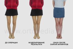Operative correction of bow legs is only effective method to fix bowlegs in adults Bow Legged Correction, Knock Knees, Go To The Cinema, Mobile Photos, Bows, Surgery, Fashion, Arches, Moda