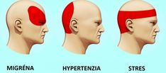 Takto sa zbavíte bolesti hlavy za 5 minút: Bez tabletiek a bez toho, aby ste niekam chodili Migraine Pain, Migraine Relief, Fitness Workouts, Getting Rid Of Migraines, How To Relieve Headaches, Gewichtsverlust Motivation, Tension Headache, Severe Headache, Headache Remedies