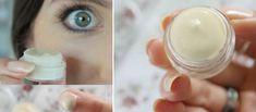 Eye Cream - Skin Care Tips Everyone Can Use >>> Be sure to check out this helpful article. Anti Aging Eye Cream, Best Eye Cream, Skin Care Cream, Skin Cream, Tear Trough, Homemade Eye Cream, Firming Eye Cream, Natural Lip Balm, Natural Face