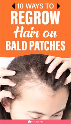 10 Ways To Regrow Hair On Bald Patches