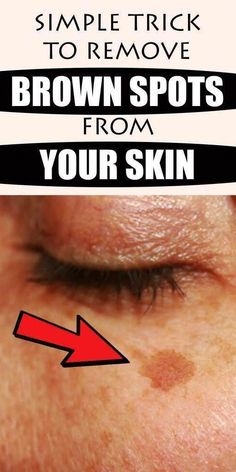 Black Spots On Face, Brown Spots On Skin, Dark Spots, Facial Brown Spots, Age Spots On Face, Beauty Skin, Health And Beauty, Beauty Care, Age Spot Removal