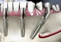 All on 4 dental Implants - What are the Benefits, Risks and potential Complications? If you are thinking of having this procedure, this blog will give you answers to your questions from #LondonSmileCare