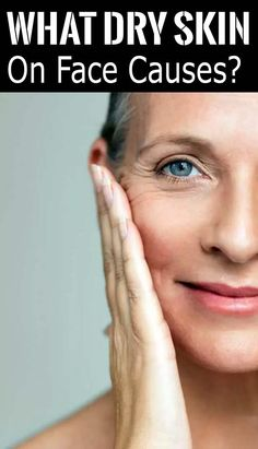 Dry Skin On Hands Moisturizer Products - The reccommended cause of itchy, dry pores and skin might seem like a no-brainer: That is a lack o. Anti Aging Moisturizer, Moisturizer For Dry Skin, Anti Aging Treatments, Skin Care Treatments, Dry Skincare, Dry Skin On Face, Dry Sensitive Skin, Layers Of Skin