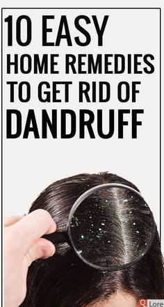 Are you ashamed of wearing a black dress? Try natural home remedies for dandruff. Using these remedies on a regular basis, you will get an effective result within 15 days. Heading: Apply natural home remedies for dandruff and shine with your hair. Home Remedies For Tanning, Home Remedies For Dandruff, Natural Home Remedies, Benefits Of Eating Ginger, How To Cure Pimples, Hair Dandruff, Getting Rid Of Dandruff, Healthy Scalp