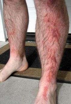 Poison Oak Rash, Be sure that you know exactly what poison ivy, poison oak, and poison sumac look like. It's very important that you can look at the plant or plants and know what plant to avoid. Plus you should know all the effective methods of treating the itch from these plants.