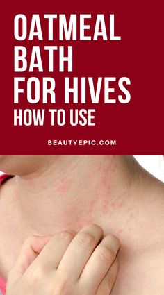 Home Remedies Oatmeal Bath Remedy for Hives: How to Use - Hives is an allergic reaction that causes swollen bumps on the skin. It causes itching of the skin and the rashes.Oatmeal bath for hives is gaining popular Hives Remedies, Rashes Remedies, Allergy Remedies, Home Remedies For Hives, Hair Remedies, Natural Teething Remedies, Natural Cough Remedies, Herbal Remedies, Home Health Remedies