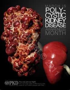 Polycystic Kidney Disease « InnardSanctum