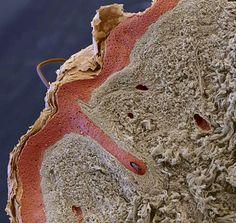 Así es la piel humana en su interior (corte) aumentada con microscopio x60 a 10…