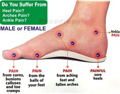 Orthotic foot support insole for men / woman- flat feet heels arches pain relief - Orthopedic Shoes Plantar Fasciitis Exercises, Plantar Fasciitis Shoes, Ankle Pain, Heel Pain, Foot Pain Chart, Sore Heels, Foot Exercises, Foot Remedies, Foot Pain Relief