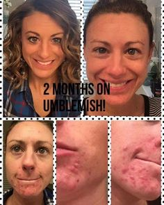 I love these results with Rodan Fields UNBLEMISH. Did you know that UNBLEMISH is THE #1 premium acne regimen in the US? Why? Because it works! DM me if you'd like more information or click on the link in my profile to order your UNBLEMISH today. by loveyourskin.rebecca