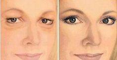 A estética vem se tornando cada vez mais importante para a maioria das pessoas.Afinal, quem não quer estar com a autoestima lá em cima?Infelizmente, o envelhecimento é um processo irremediável e a pele é bem afetada.