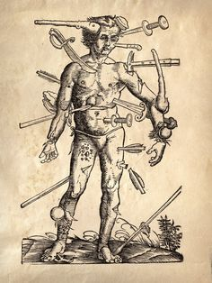 18x24 Vintage Anatomy Wounded Man Antique Weapons by curiousprints, $30.00