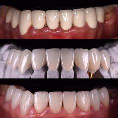 Replacement of dull metal ceramic crowns with lifelike IPS e.max crowns. Also; OssTem implant was placed on left canine and restored with screw retained e.max crown... Oldukça donuk görüntüdeki metal seramik restorasyonlar çıkarılarak çok daha fazla ışık geçirgenliği sahip IPS e.max kuron protezleri uygulandı. Bu arada sol köpek dişi; implant yerleştirildikten sonra vida tutuculu e.max kuron protezi ile restore edildi... Cdt. @sibelkucukel  #emax #crown #osstem #implant #dentalimplant…
