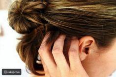 حلول ونصائح للتخلص من قشرة الشعر @ra2ej