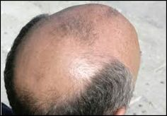 Male Pattern Baldness(Androgenic Alopecia) Treatment Options-Video…