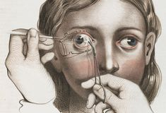 Surgery to correct strabismus (abnormal alignment of the eyes) which involved the division of the internal muscles of the eyeball so the eye would point in the right direction. | Morbidly Beautiful Pictures Reveal The Horror Of Surgery In The Victorian Era
