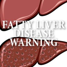 Dr. Oz: What Is Non-Alcoholic Fatty Liver Disease