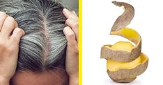 Get Rid of White Hair Using Potato Only! - Final Solution Get Rid of White Hair Using Potato Only! Curly Hair Care, Curly Hair Styles, Natural Hair Styles, Beauty Care, Beauty Hacks, Hair Beauty, Bad Hair, Hair Day, Bronze Hair