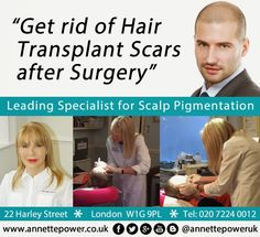 Get rid of Hair Transplant Scars after Surgery - Scalp Pigmentation in London