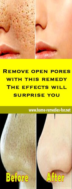 Remove open pores with this remedy – The effects will surprise you