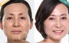 Hiệu quả từ công nghệ căng da mặt bằng chỉ sinh học Bio Lift