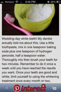 #アイデア#ナチュラル#歯#ヒント#ホワイトニング#ホワイトニング - What you need to know for a healthy life Charcoal Teeth Whitening, Natural Teeth Whitening, Whitening Kit, Charcoal Toothpaste, Doterra, Zahn Bleaching, Get Whiter Teeth, Veneers Teeth, Beautiful Teeth