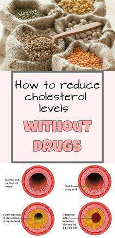 How to reduce cholesterol levels without drugs