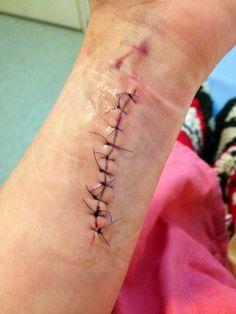 Hospital Bracelet On Wrist Tumblr