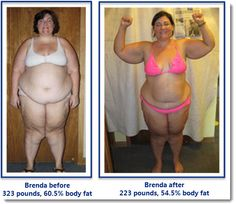 """We believe that every fat loss goal achieved, no matter how small, should be recognized and celebrated as success. It's also important to remember one of the """"prime directives"""" of Burn the Fat philosophy: to focus on fat loss and better body composition, not merely losing weight. However, because 100 pounds of weight loss is such a major milestone, those who achieve it here deserve recognition and appreciation with a special place in the Burn the Fat hall of fame"""