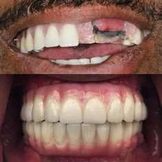 This patient continually broke his which… Teeth Whitening Remedies, Best Teeth Whitening, Dental Bridge Cost, Dental Laboratory, Dental Procedures, Cosmetic Dentistry, Dental Implants, At Least, Porcelain